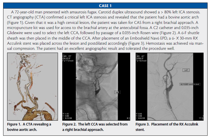 Endovascular Today Upper Extremity Approaches For Carotid Stenting