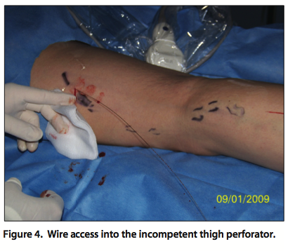 Endovascular Today - Treatment of Recurrent Varicose Veins (July 2014)