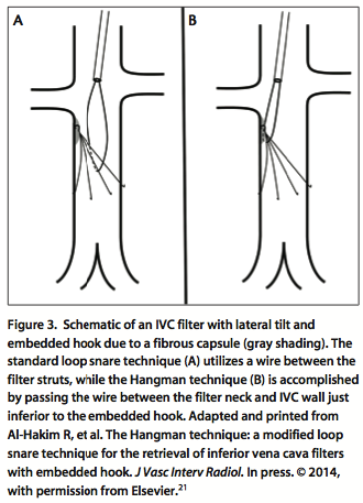 endovascular today - retrievable inferior vena cava filter update ...