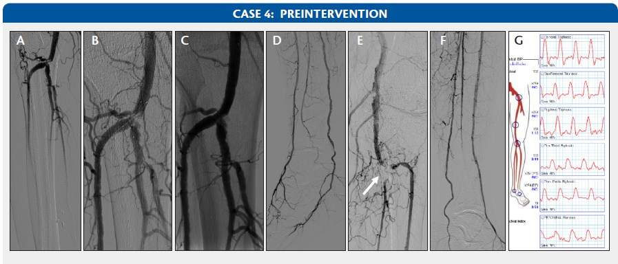 Endovascular today editors access and closure challenge how left leg doppler tracings and segmental pressures were also performed case 4g sciox Image collections