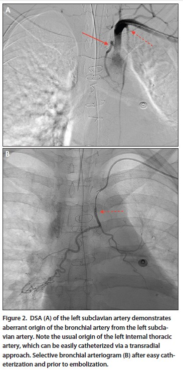 radial artery access to bronchial artery embolization Bronchial artery (ba) embolization (bae) is a very effective procedure in massive   via a right femoral access, the bronchial and intercostal vessels were.