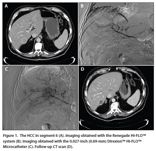 An Intraprocedural Decision Was Made To Forego Embolization And Administer Macroaggregated Albumin Prepare For Yttrium 90 Treatment