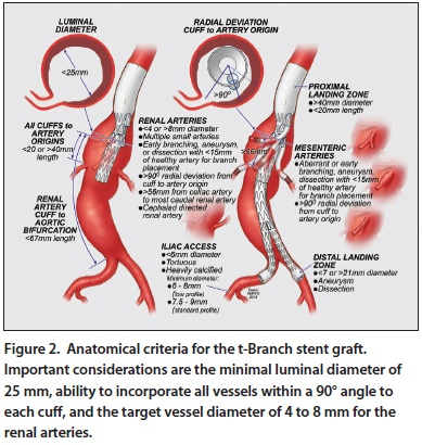 Endovascular Today Endovascular Repair Of Taaas With The T Branch