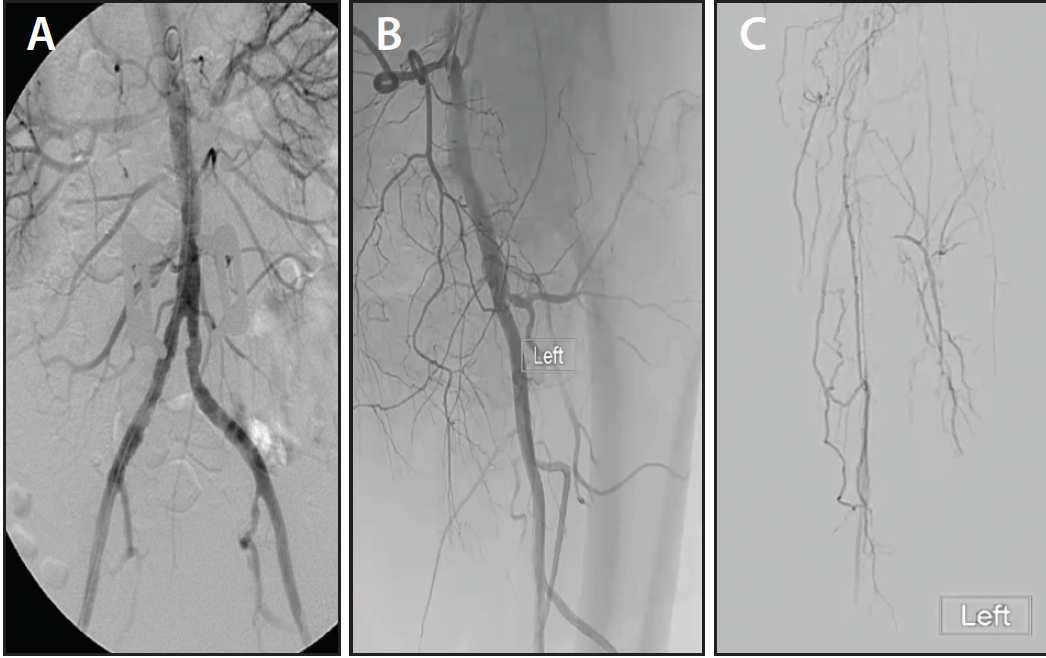 Endovascular Today - Long Peripheral CTOs: Femoropopliteal to Mid ...