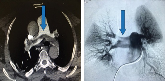 CT Scan And Pulmonary Angiogram