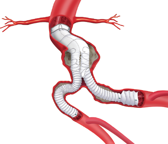 Stent And Delivery System Design