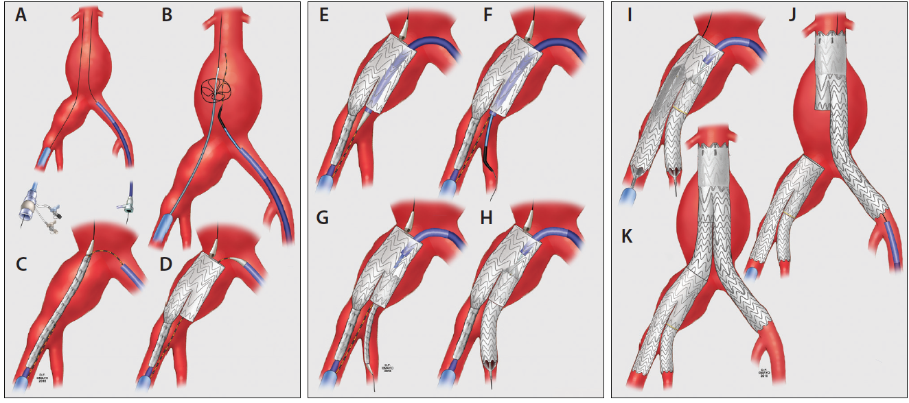 Endovascular Today - Techniques of Endovascular Aortoiliac Repair ...