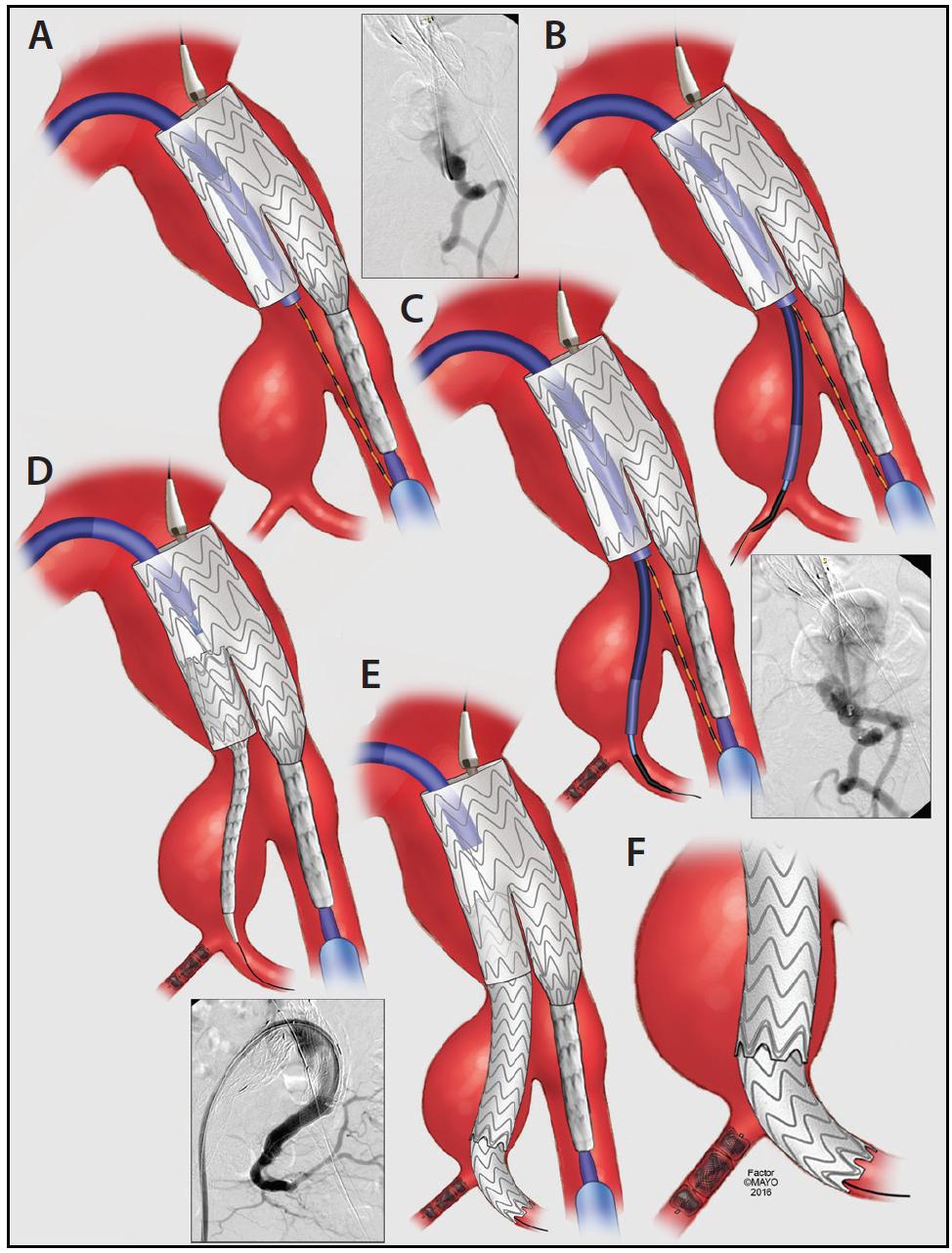 Endovascular Today Techniques Of Endovascular Aortoiliac Repair