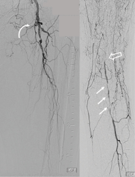 Endovascular Today - An Extensive, Calcified CTO in the Superficial ...