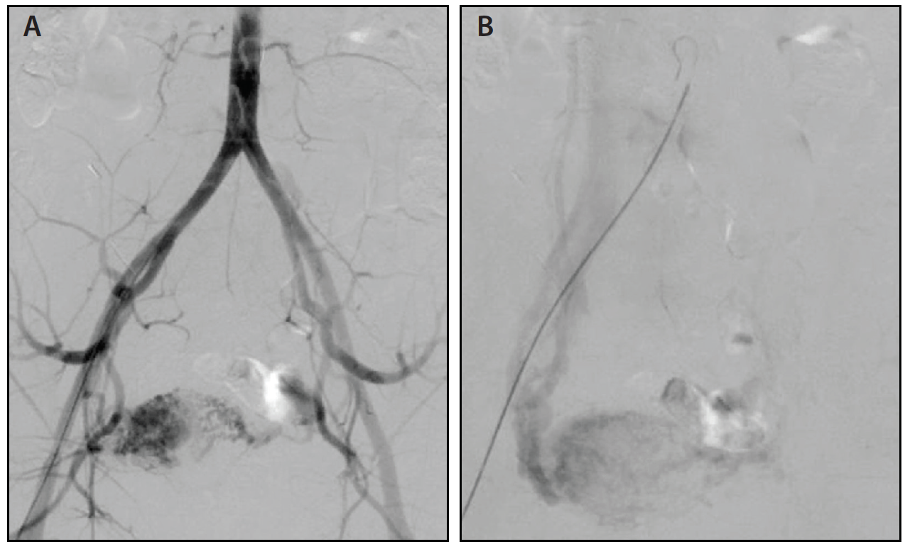 Endovascular Today - Diagnosis and Treatment of Uterine and