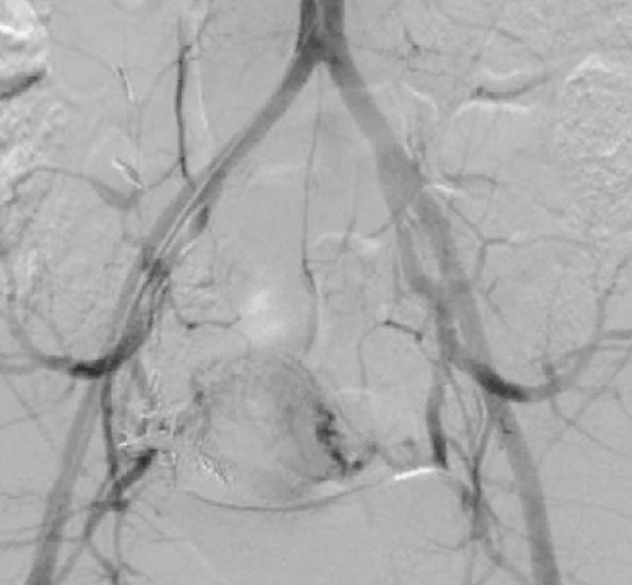 endovascular today diagnosis and treatment of uterine and pelvic