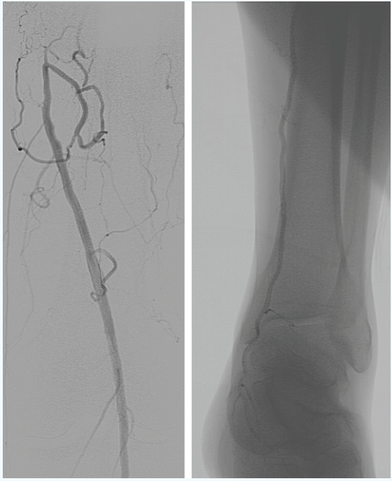 Endovascular Today Left Superficial Femoral Artery Occlusion In A